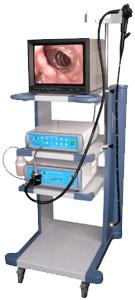 EMV-200型电子上消化道镜